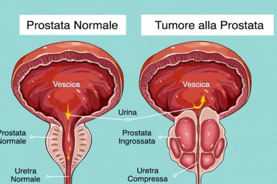 Prostatitis és paradicsom